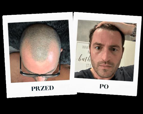 heva clinic przeszczep włosów przed po 2