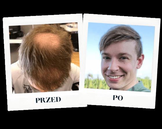 heva clinic przeszczep włosów przed po 3