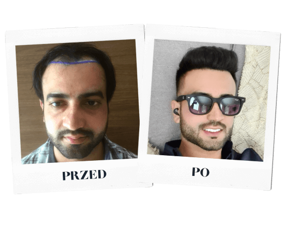 heva clinic przeszczep włosów przed po 5