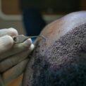 front-line-hair-implantation