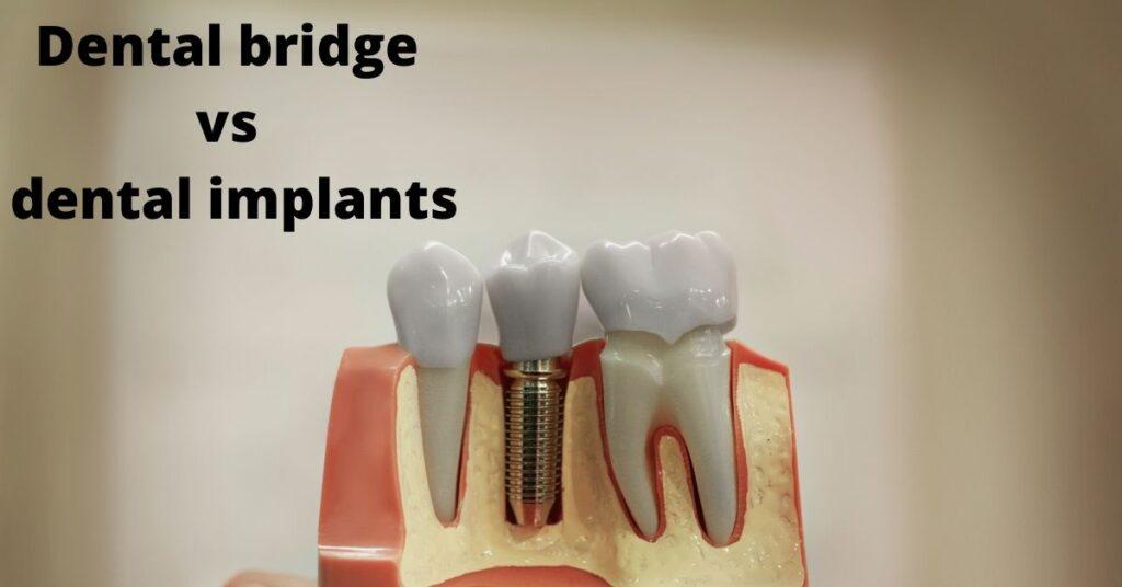 dental bridge vs dental implant comparison