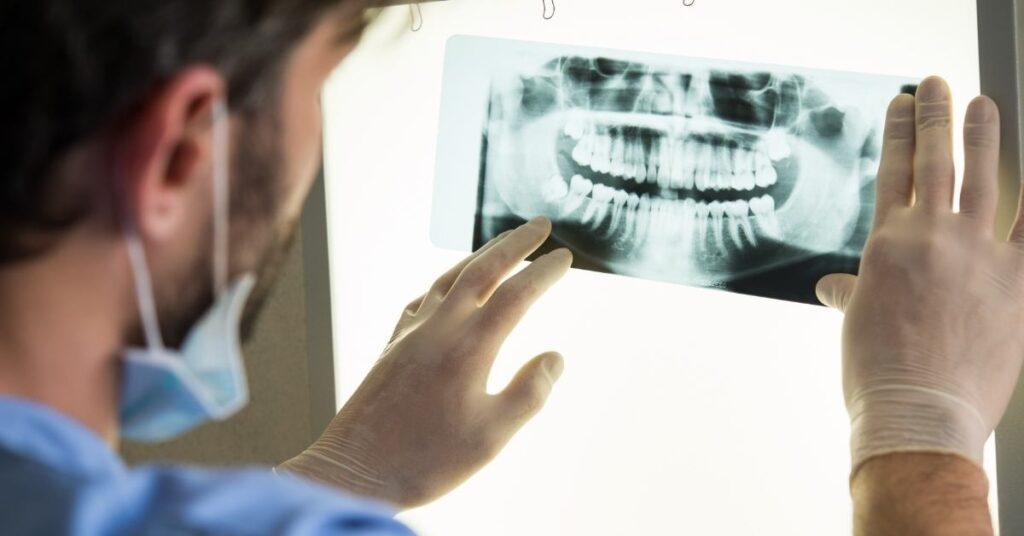 dental implant film dentist check