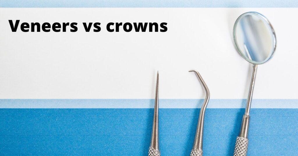 dental veneers vs crown comparison