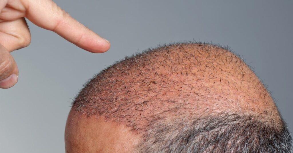 500-graft-hair-transplant