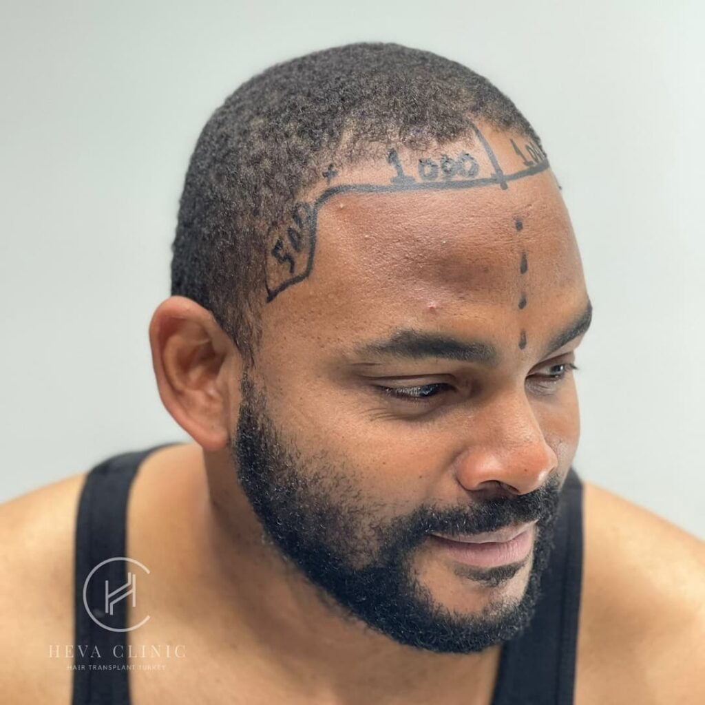 heva clinic afro hair transplant operation