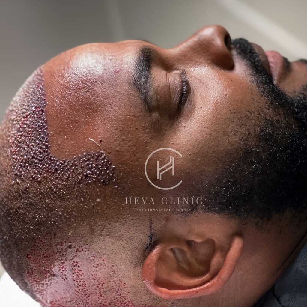 afro hair type patient after hair transplant
