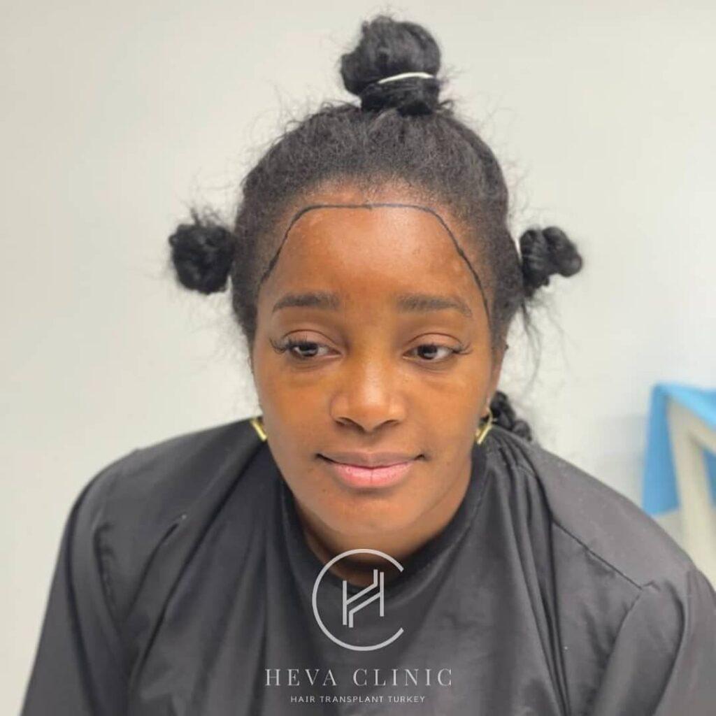 black woman afro hair transplant patient heva clinic