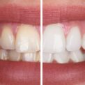 teeth whitening difference