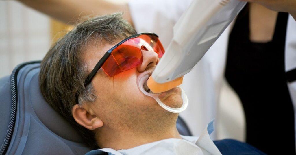 man teeth whitening treatment process turkey