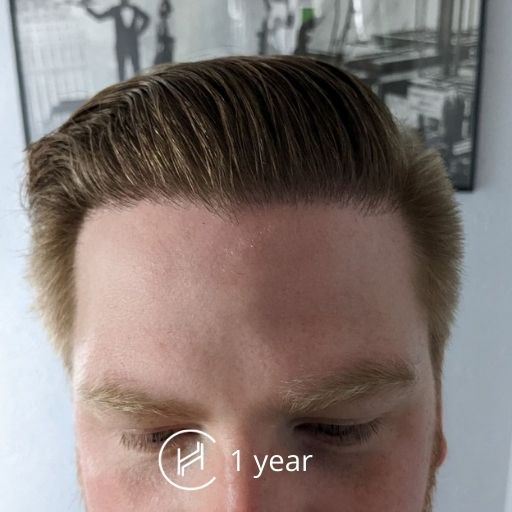 1 year after hair transplant front