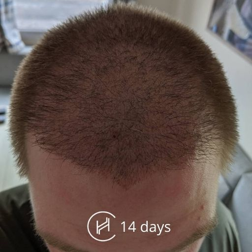 14 days after a hair transplant forehead
