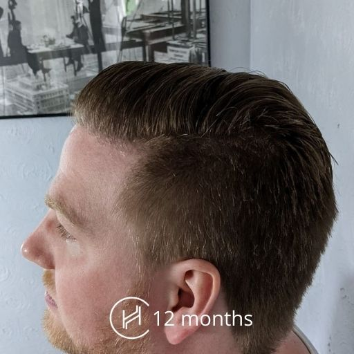 1 year after hair transplant side