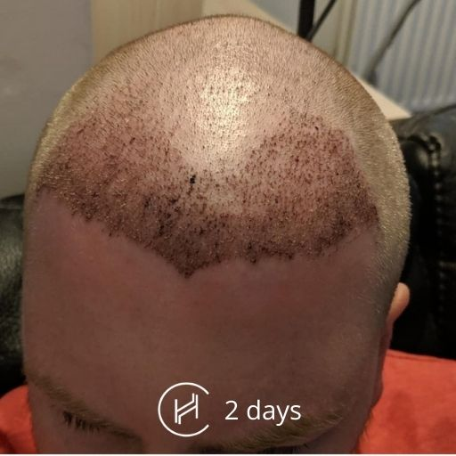 2 days after hair transplant forehead