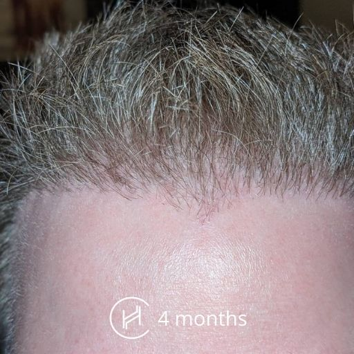 4 months after a hair transplant