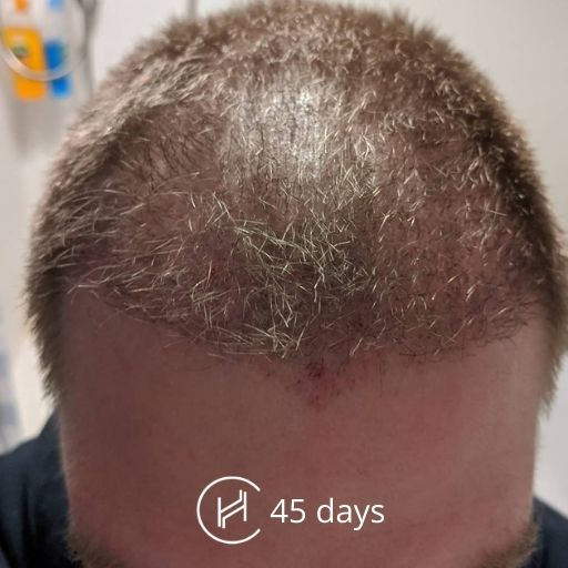 1.5 months after a hair transplant forehead