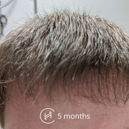 5 months after a hair transplant