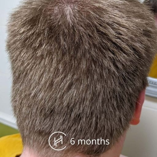 6 months after hair transplant donor area