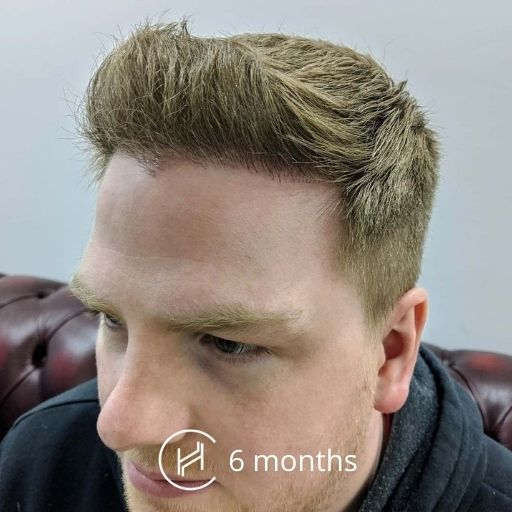 6 months after a hair transplant