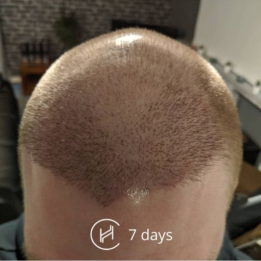 7 days after a hair transplant forehead