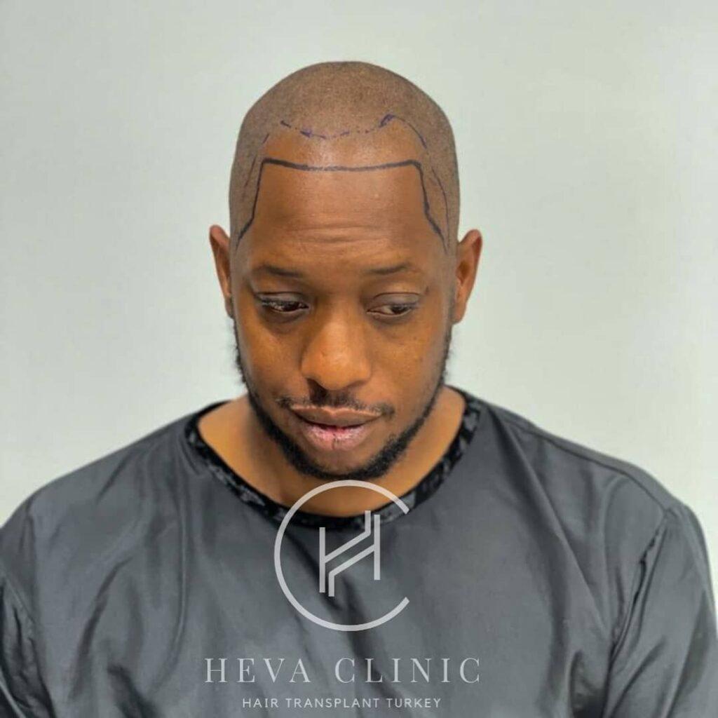 afro type hair black male hair transplant operation