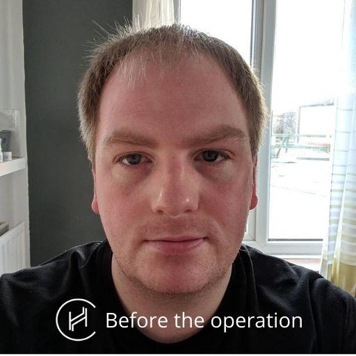 before-hair-transplant-surgery