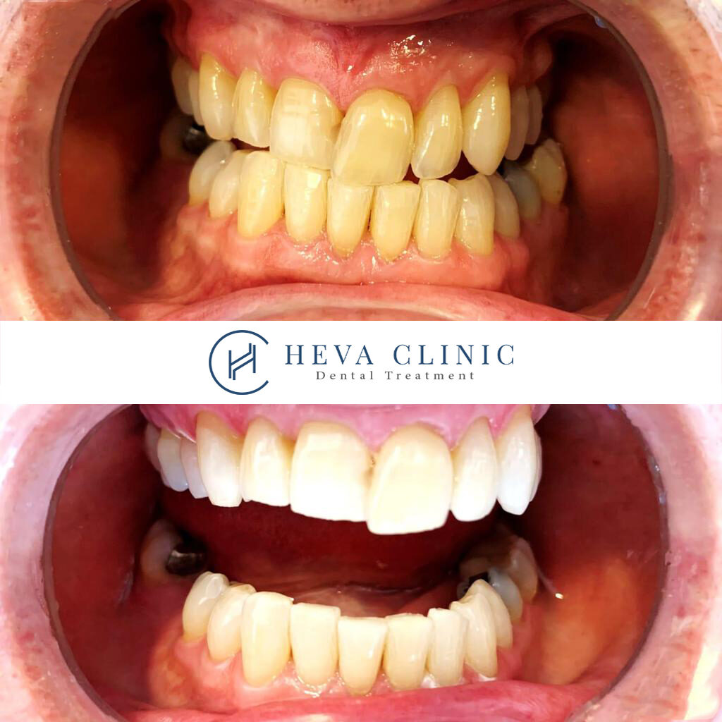 before after patient dental whitening heva clinic
