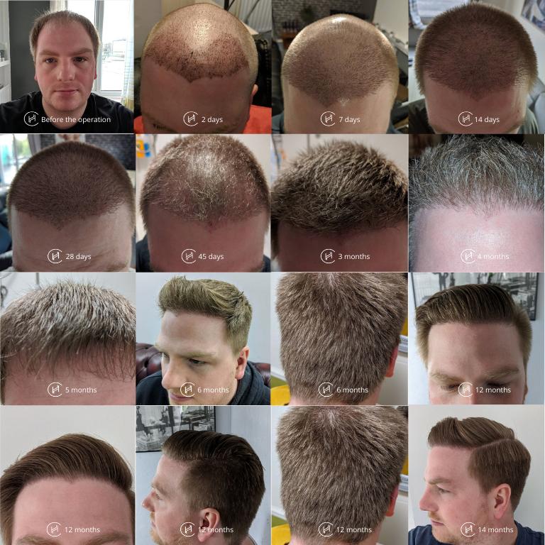 hair transplant timeline compilation