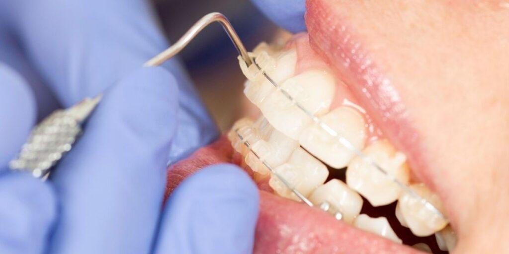 Dentist puts ceramic clear dental braces
