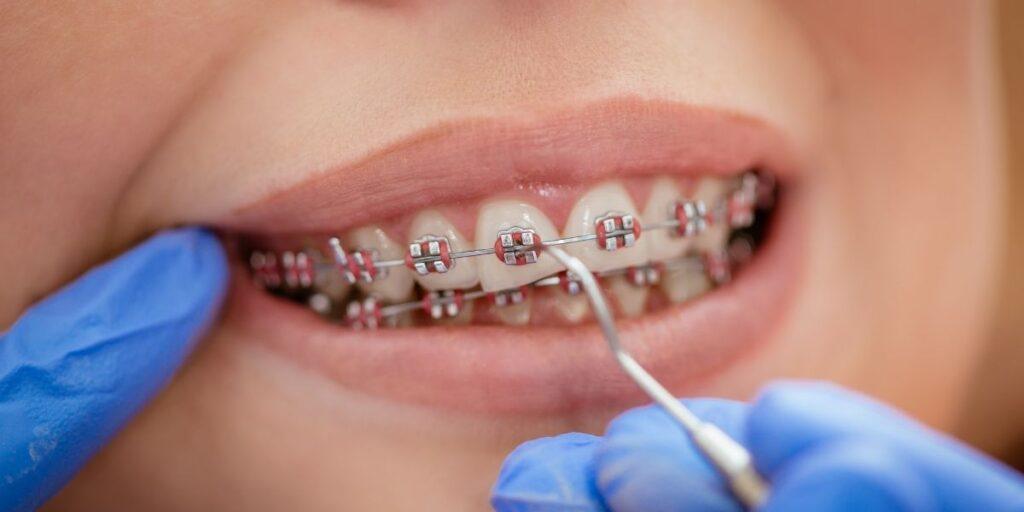 dental metal braces woman patient