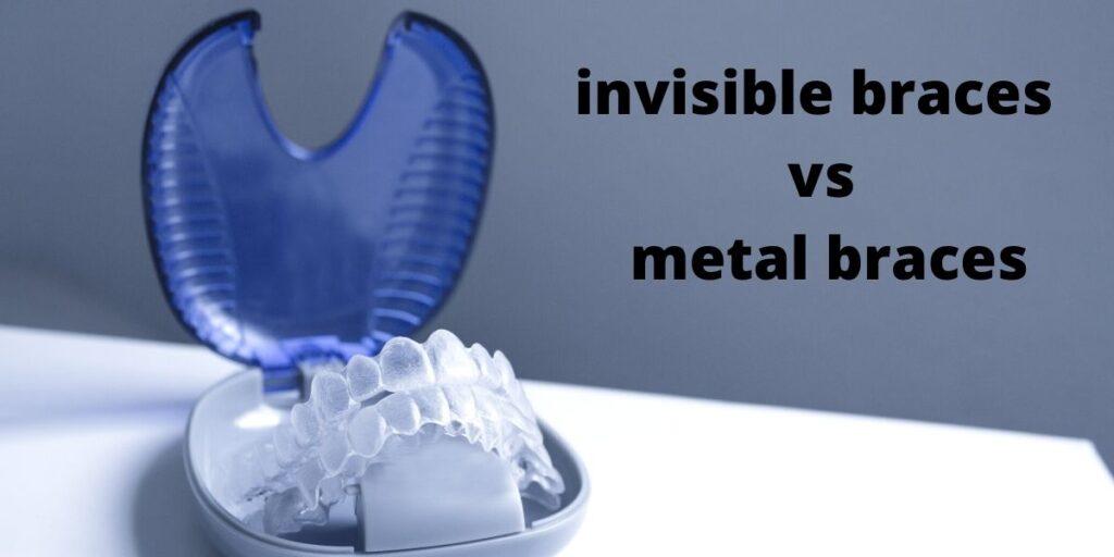 invisible vs metal braces comparison
