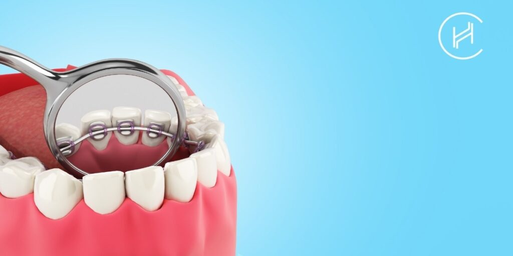 lingual dental braces and dentist equipment figure
