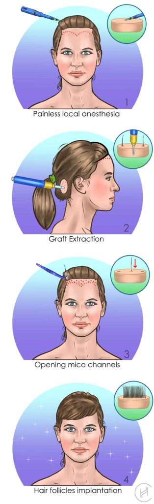 female hair transplant procedure