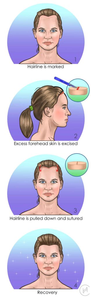 forehead reduction hairline lowering procedure steps