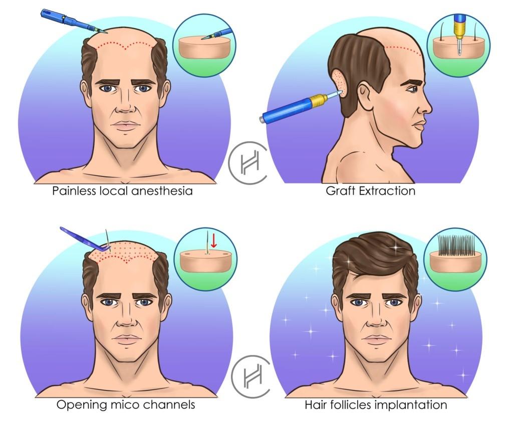 5000 hair transplant process step by step